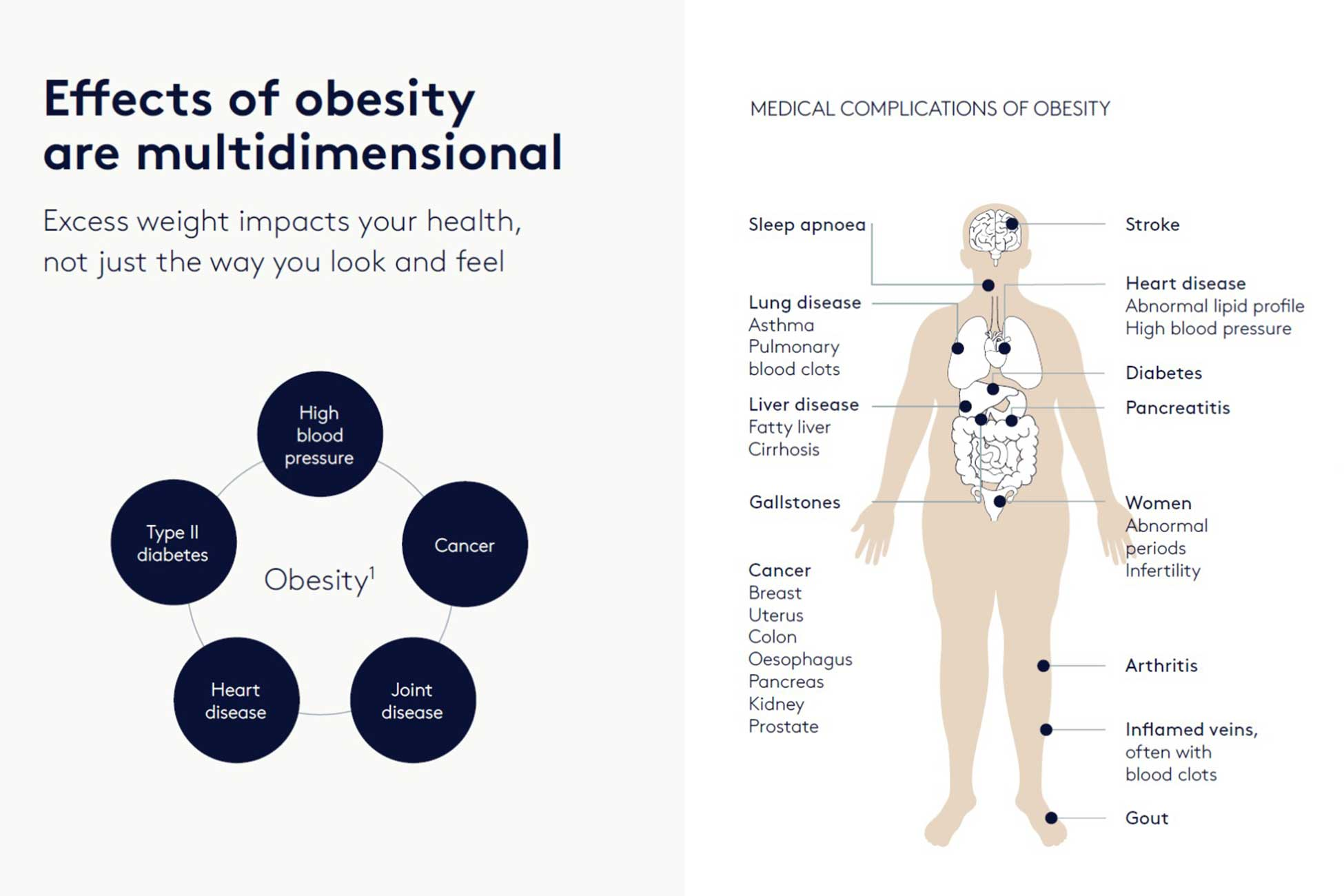 Obesity Effects and Risks